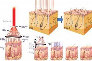Nguyên nhân gây u tuyến mồ hôi